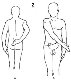 Figura n.2