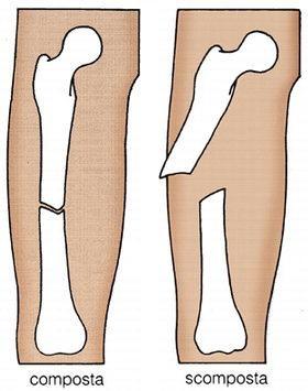 Il tessuto osseo