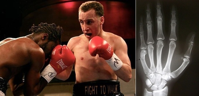 boxing injuries