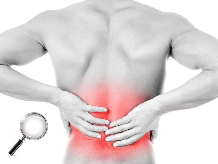 La scienza del mal di schiena – Low back pain (LBP) e informazioniutili